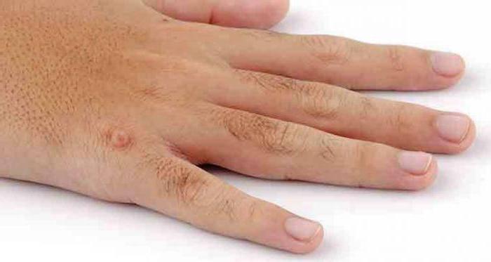 Бородавки на руках. причины и лечение в домашних условиях. народные средства, мази из аптеки, удаление лазером