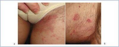 Шелушение кожи на яичках: причины и лечение у мужчин