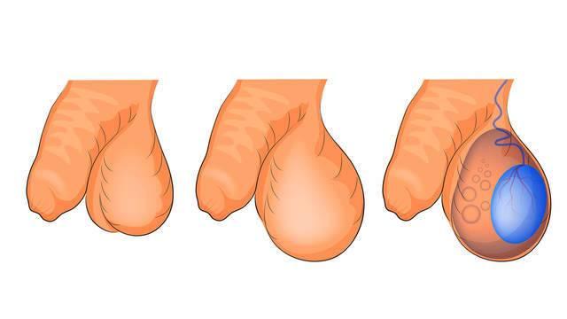 Почему болит яичко справа у мужчин, причины, как лечить
