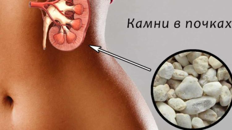 Лечение камней в почках народными средствами. симптомы камней в почках. как вывести камни из почек в домашних условиях