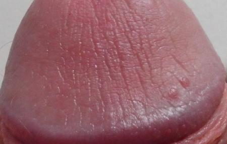 Красные прыщи на головке у мужчин: фото, возможные болезни, лечение