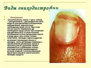 О чем может свидетельствовать и что делать если папиллома почернела, засохла и болит