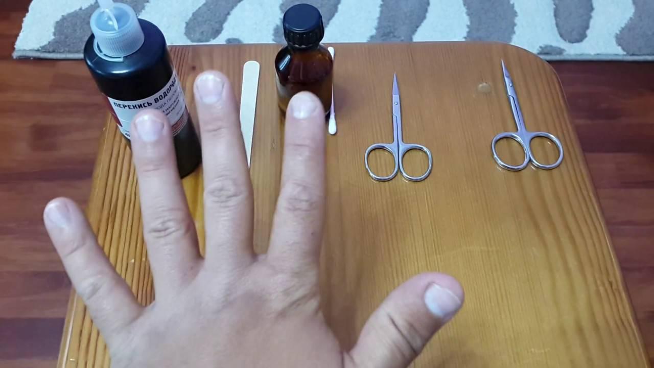 Грибок ногтей на ногах — лечение, причины, симптомы