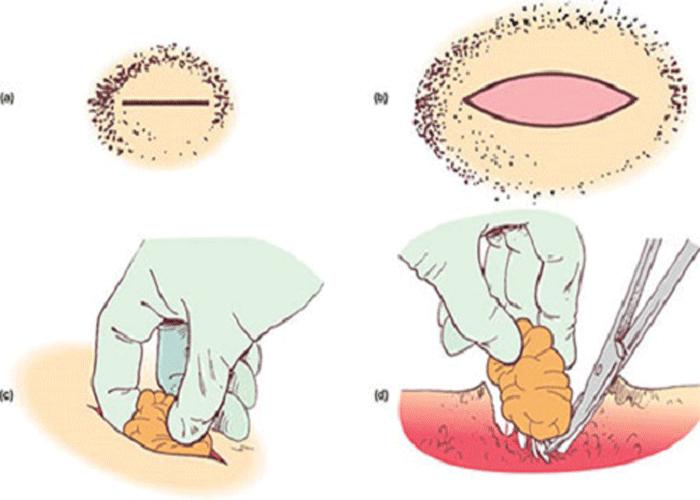Атерома мошонки – симптомы и лечение атеромы мошонки