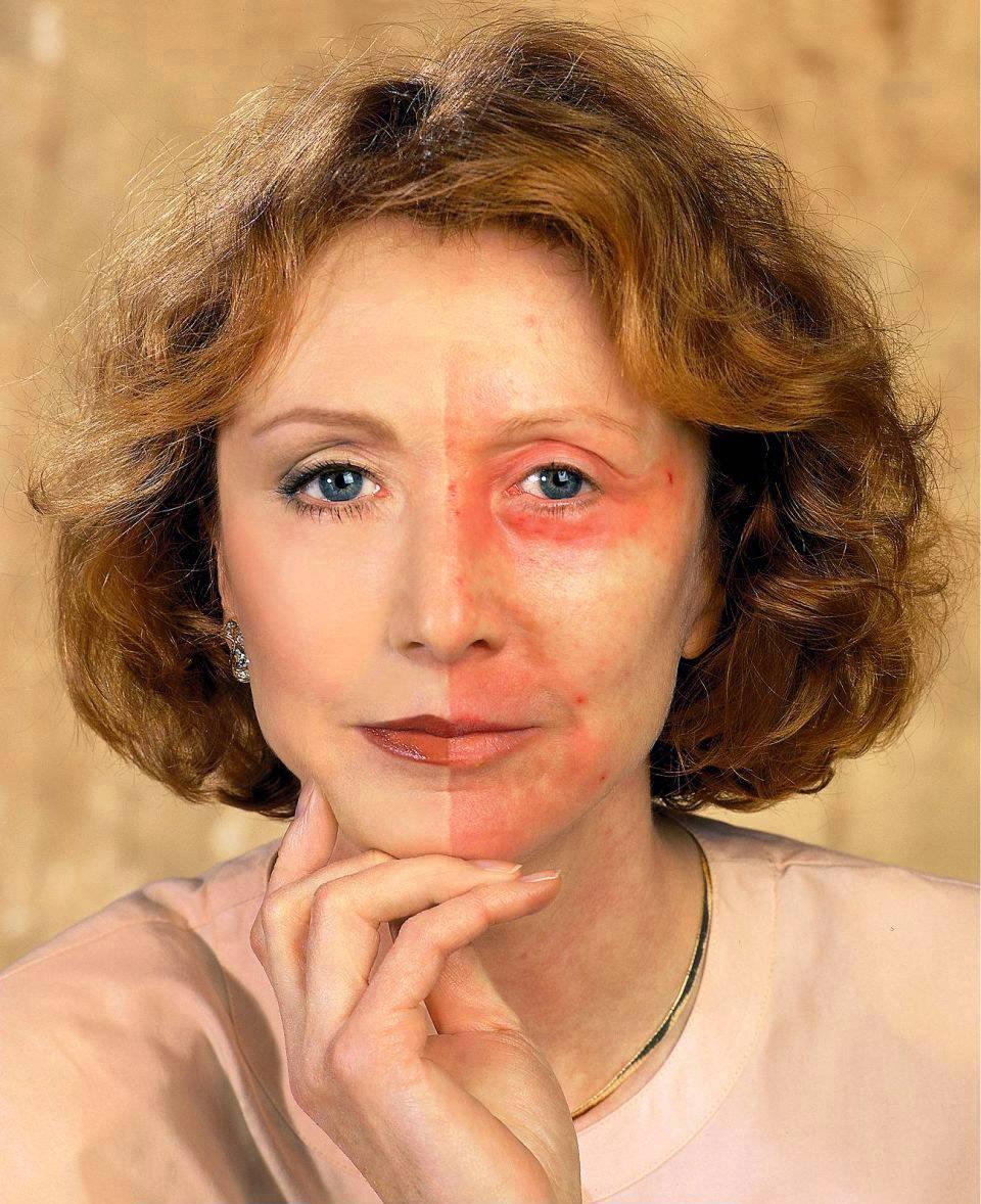 Cocamidopropyl betaine в косметологии. какой вред он приносит здоровью?