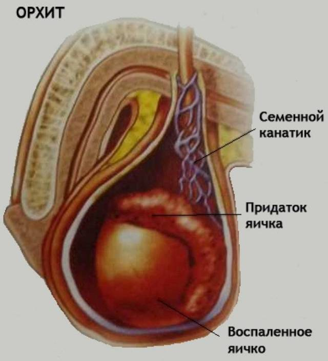 Почему болят яички у мужчин, как справиться с патологическим состоянием