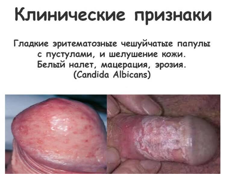 Проявления молочницы у мужчин