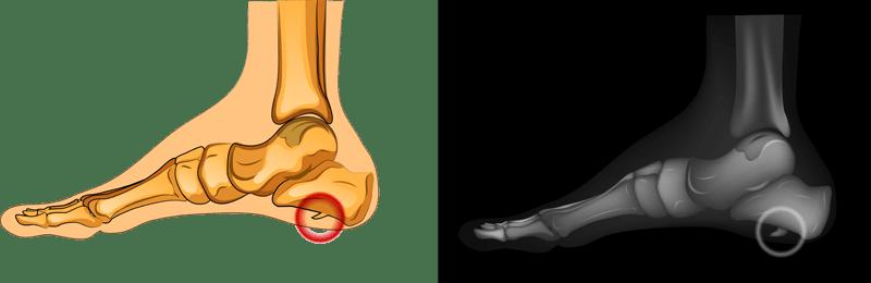 Пяточная шпора – причины появления, процедуры и профилактика