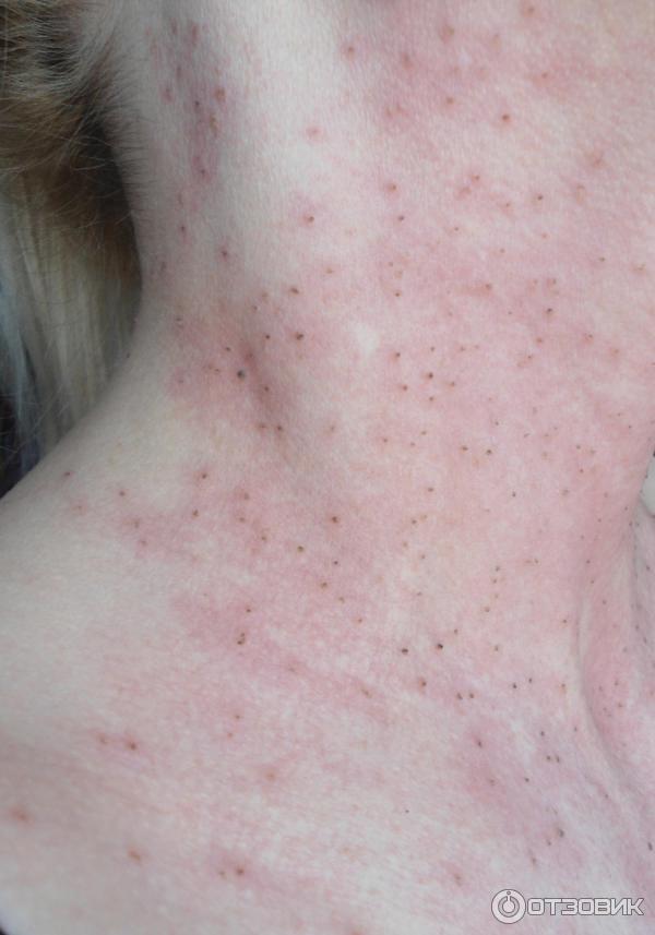 Как удалить папилломы на шее в домашних условиях: кремы, мази и народные средства
