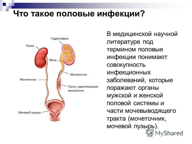 Возможные инфекции при заболевании мочеполовой системы