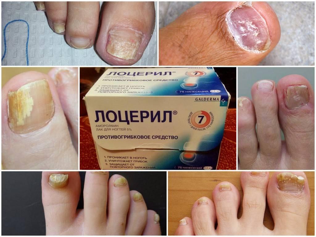 Лоцерил: инструкция по применению лака против грибка ногтей