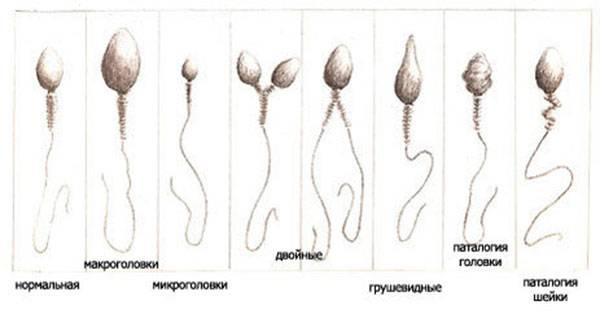 Изучение анализа по спермограмме
