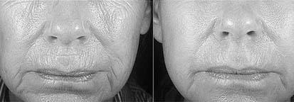 Лечение акне на лице