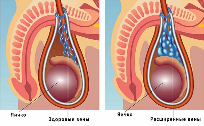 Какие лекарства помогут избавиться от варикоцеле яичка и чем грозит самолечение?