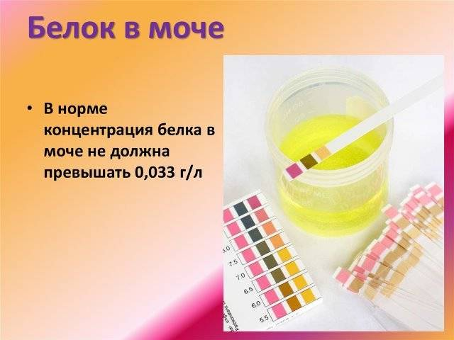 Эритроциты и белок в моче