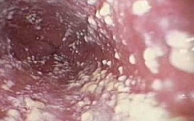Как снять воспаление крайней плоти. воспаление крайней плоти и головки у мужчин: диагностика, симптомы, методы лечения. воспаление крайней плоти у мужчин: фото