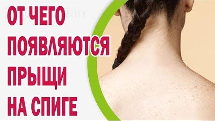 Причины появления прыщей на спине у женщин. как лечить акне, профилактика
