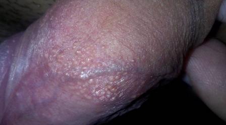 Гранулы фордайса на половых губах или головке