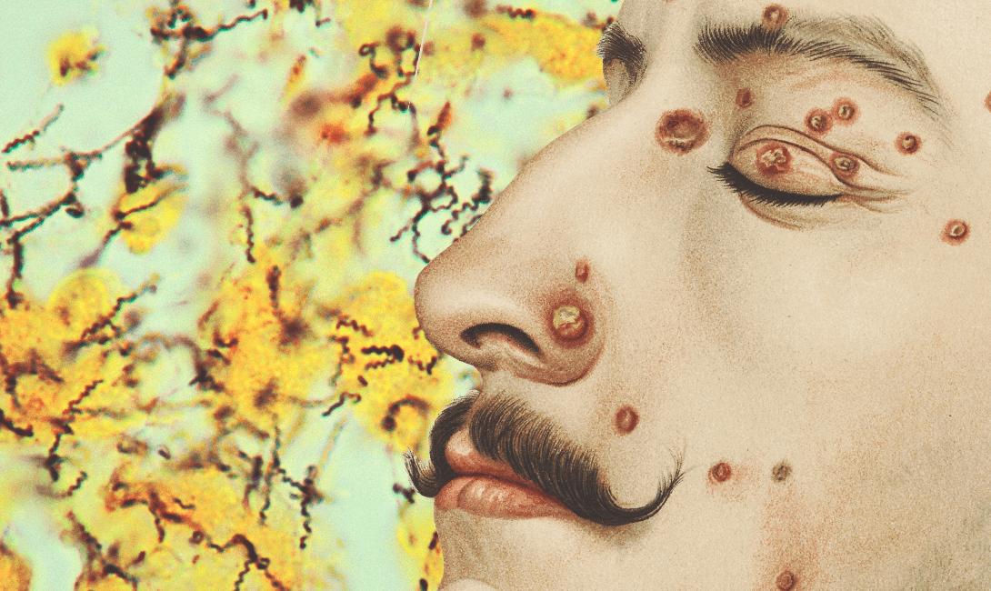 О чем свидетельствует жжение в головке у мужчины без выделений
