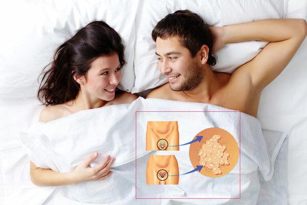 Папилломы в интимной зоне у мужчин