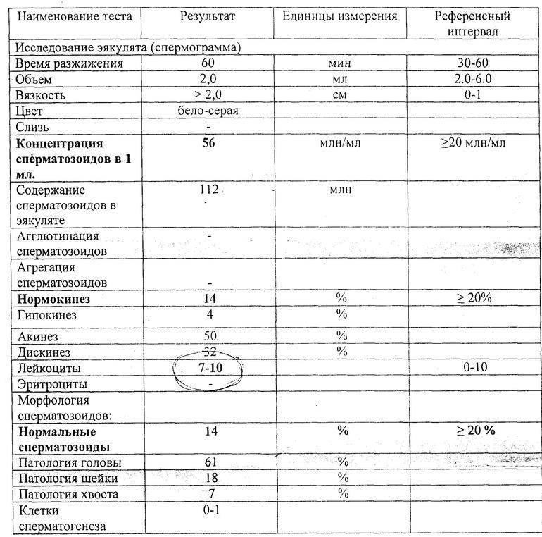 Спермограмма по крюгеру: суть анализа, подготовка и расшифровка