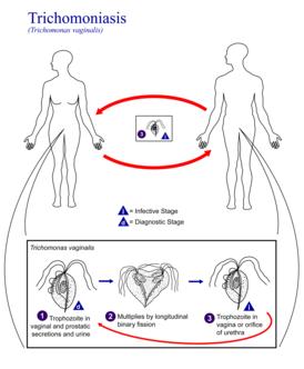 Одно из самых распространенных заболеваний: трихомониаз