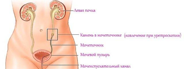 Камень в мочеточнике симптомы у мужчин