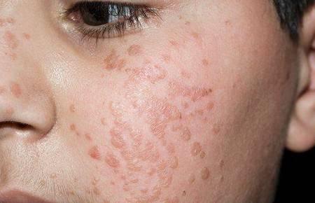 Причины и лечение прыщей на половых губах у женщин