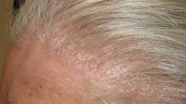 Причины прыщиков в волосистой части головы у взрослых