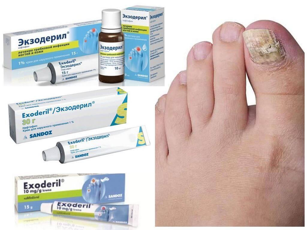 Эффективные мази от грибка на ногах, недорогие и хорошие. народные рецепты для лечения на начальной стадии