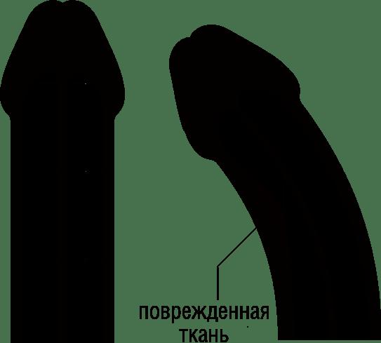 Что делать при переломе полового члена