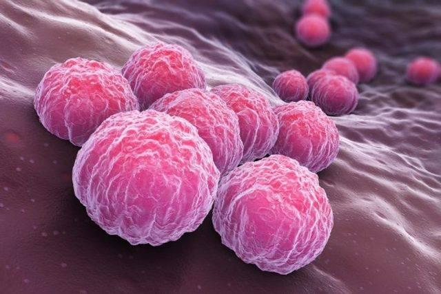 Хламидиоз: пути заражения, симптомы, методы лечения