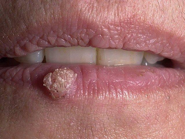 Лечение папиллом на губах
