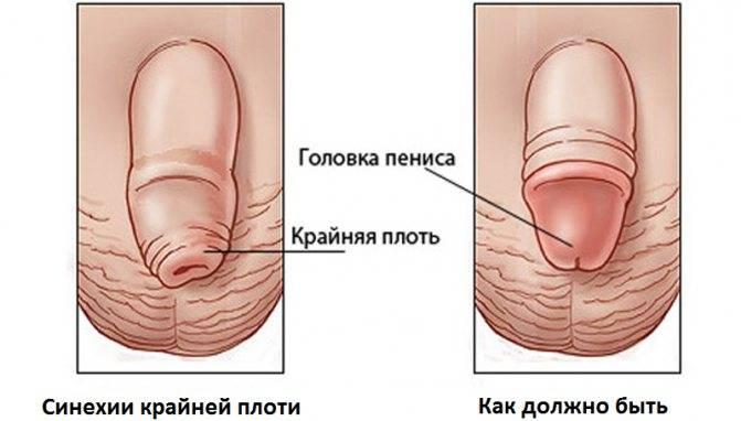 К какому врачу обращаться мужчинам при фимозе