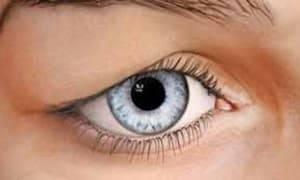 Почему появляются папилломы на глазу и как от них избавиться
