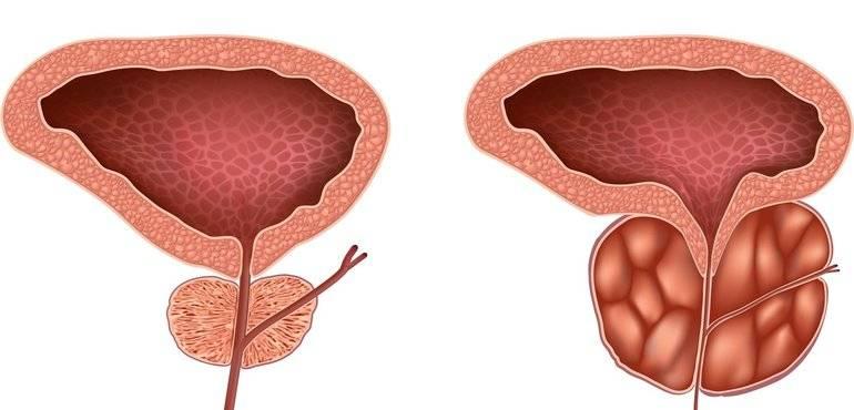 Лечение застойного простатита и его основные симптомы