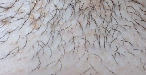 Прыщи на лобке: причины и лечение