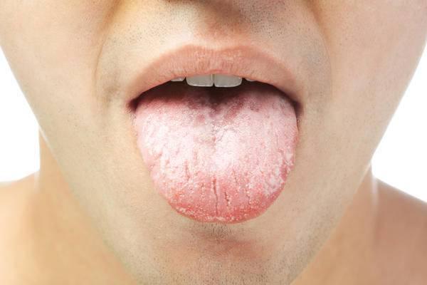 Причины, симптомы молочницы у мужчин