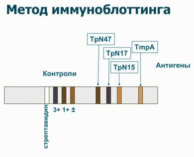 Лабораторные методы диагностики сифилиса