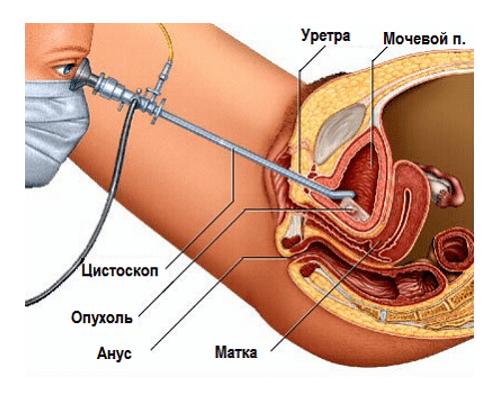 Мочеполовые болезни у мужчин