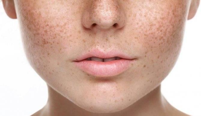 Пигментные пятна на лице — как избавиться в домашних условиях: народные средства, мази из аптеки, препараты в косметологии