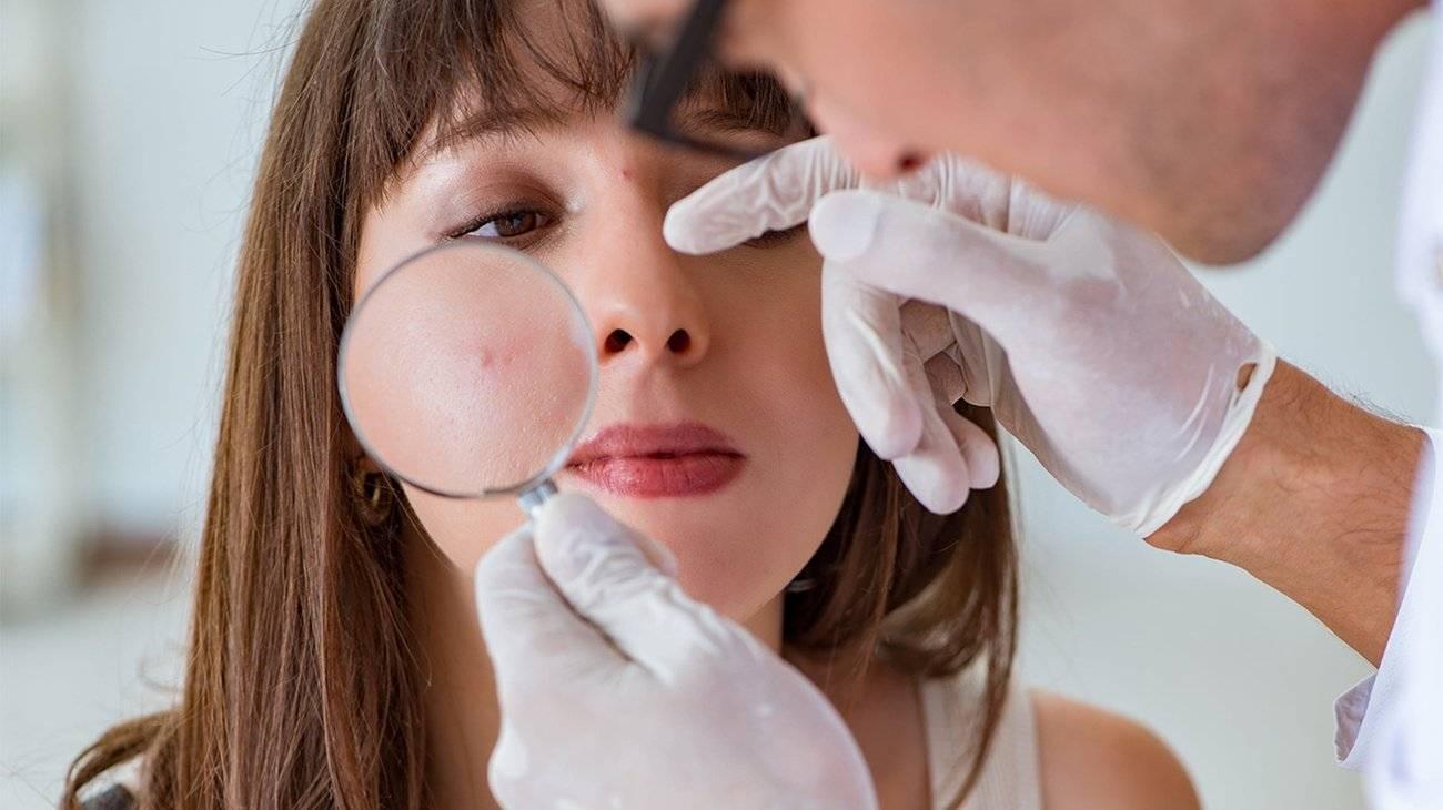 Прыщи на лице: к какому врачу обратиться?