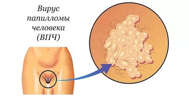 Лечение папилломы на интимном месте у мужчин