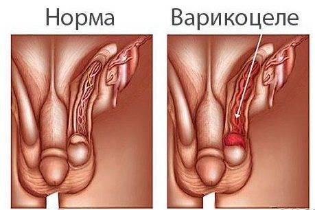 Варикоцеле: виды операций, восстановление и профилактика рецидива