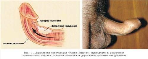 Искривление полового члена — анатомическая особенность или патология?