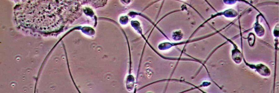 Пиоспермия у мужчин: что это такое, как лечить и возможность беременности