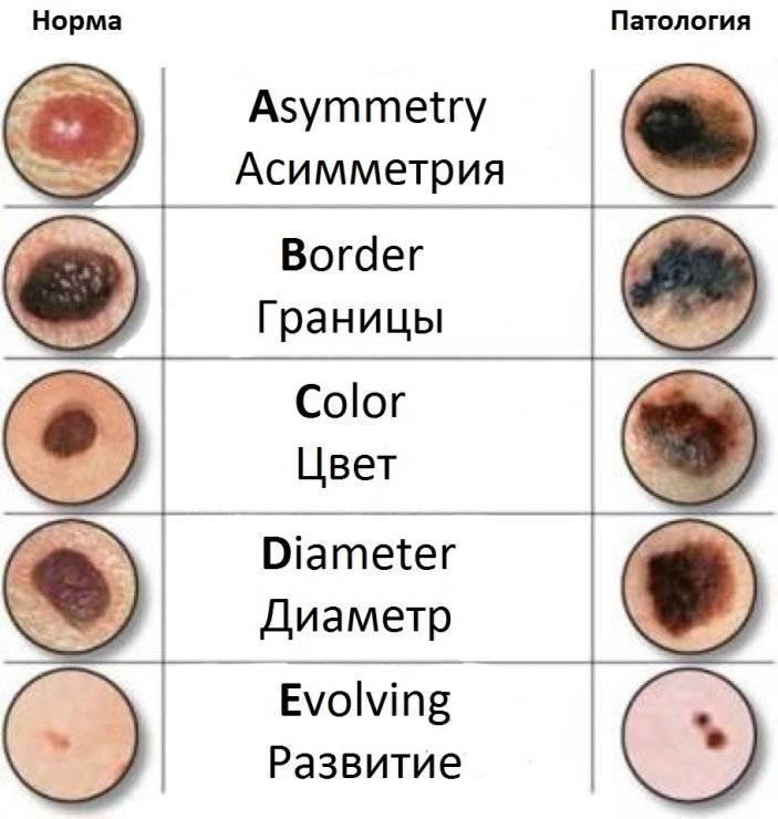 Как определить природу образования на коже – прыщ или родинка