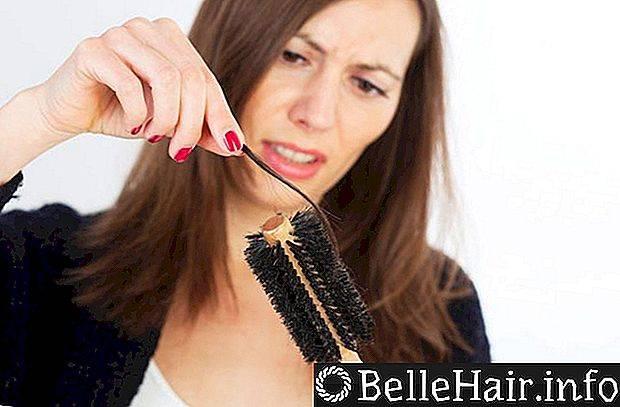 К какому врачу идти если выпадают волосы