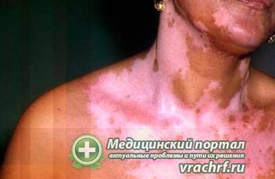 Витилиго (накожная болезнь)