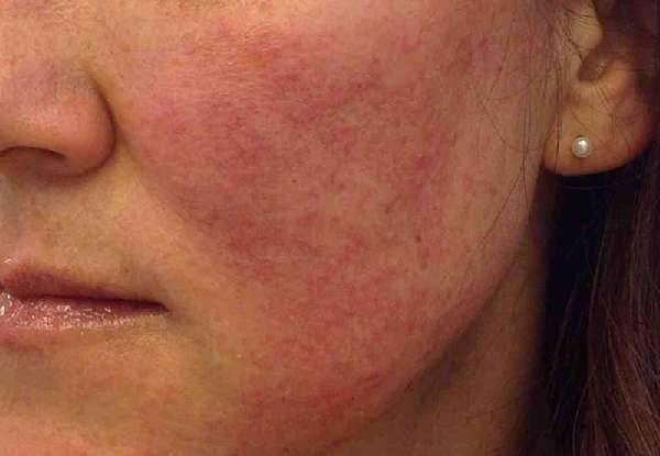 Что делать, если слезает кожа с головки члена?